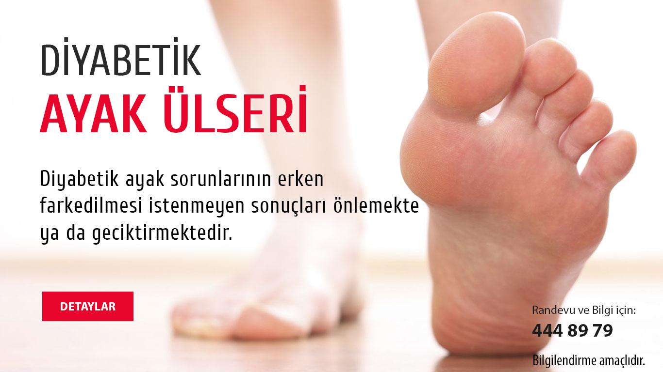 Diyabetik ayak ülserleri